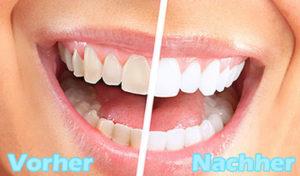 Wie bekommt man weiße Zähne Platz 3